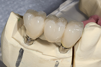 If you are missing a tooth, a dental bridge might be the best option for you.