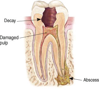 Detail image of cut away tooth - root canal.