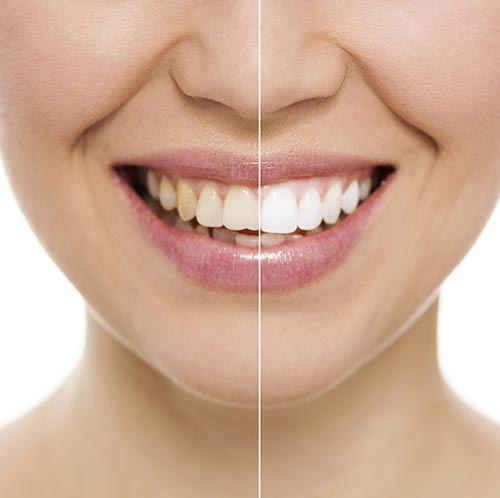 Teeth Whitening at Beautiful Smiles